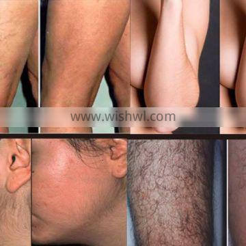 3000W 808nm Diode Laser Diode Laser Abdomen Hair Removal Permanent Hair Removal