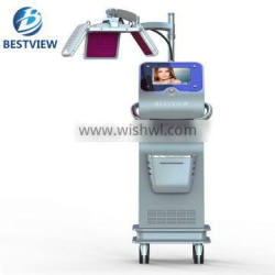 how to treat hair loss laser best hair regrowth products BM-666