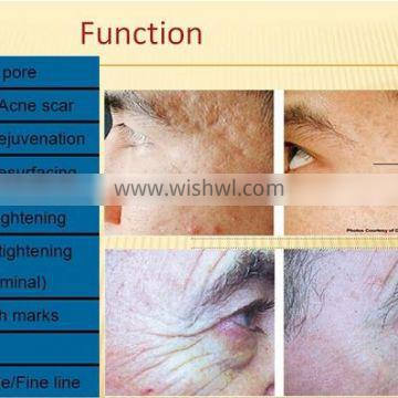 Rf facial skin lifting wrinkle removal machine system, rf equipment for sale