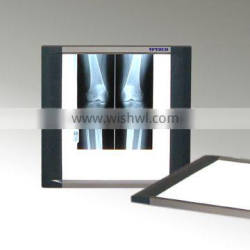 X ray film viewer for hospital useful