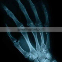 x-ray medical equipment,x-ray fuji dry film,agfa cr film for medical equipment alibaba china