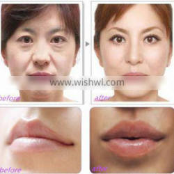 High quality 100% pure Sodium Hyaluron injectable dermal filler to remove wrinkes Nasolabial Folds Quality Choice